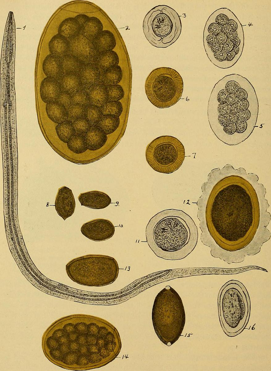 Medical Illustration of uncinaria Americana. Illustration originally published in Diagnostic methods, chemical, bacteriological and microscopical: a text-book for students and practitioners (Philadelphia: P. Blakiston's Son & Co., 1909), 192. Image uploaded by Flickr user Internet Archive Book Images. Image is in public domain.