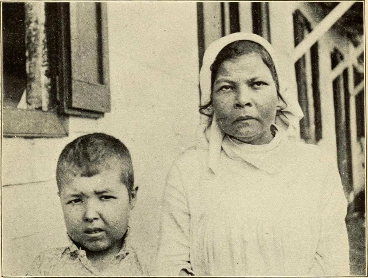 Typical Facial Expression of the Sufferers, Puerto Rico, 1911. Originally published in Bailey K. Ashford and Pedro Guitérrez Igaravidez's Uncinariasis (Hookworm disease) in Porto Rico: a medical and economic problem (Washington DC: US Government Print Office, 1911). Photograph uploaded by Flickr user Internet Archive Book Images. Image is in public domain.