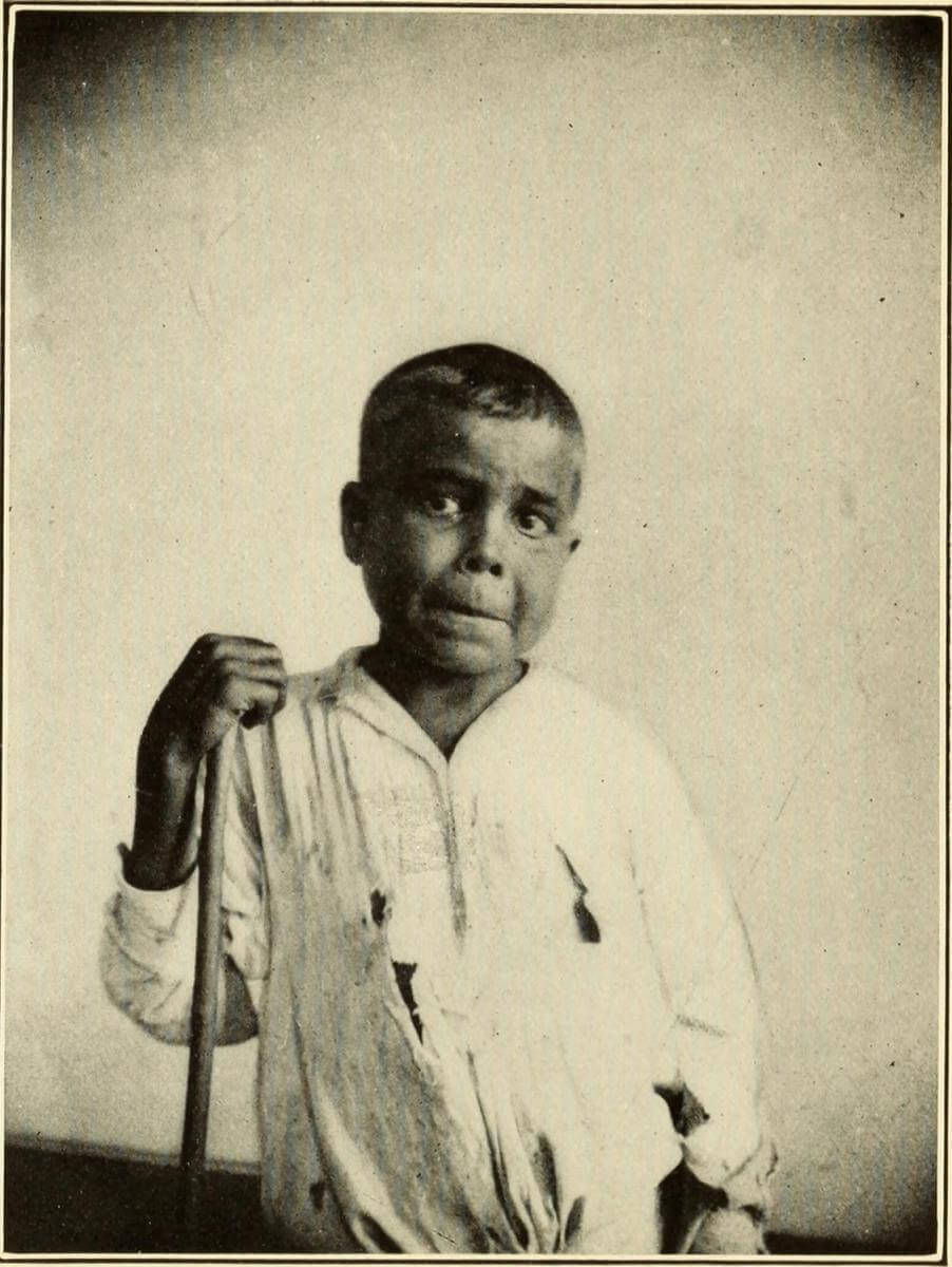 Typical Face, Boy, Puerto Rico, 1911. Originally published in Bailey K. Ashford and Pedro Guitérrez Igaravidez's Uncinariasis (Hookworm disease) in Porto Rico: a medical and economic problem (Washington DC: US Government Print Office, 1911). Courtesy of Wikimedia Commons. Image is in public domain.