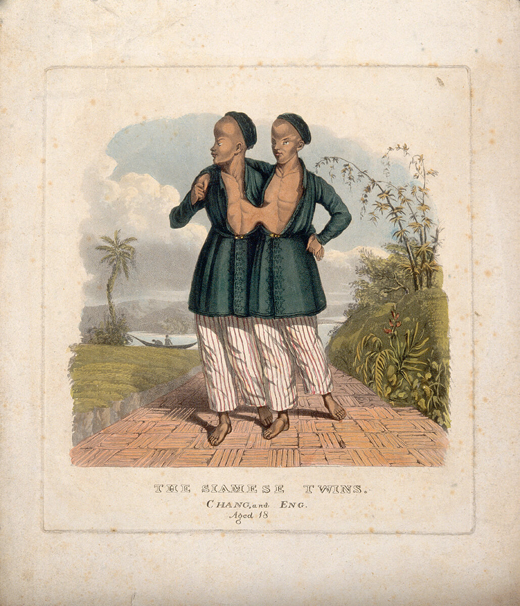 The Siamese twins, Chang and Eng, Aged 18. Aquatint with etching and watercolor by unknown creator. Courtesy of the Wellcome Collection. Creative Commons license CC BY 4.0.