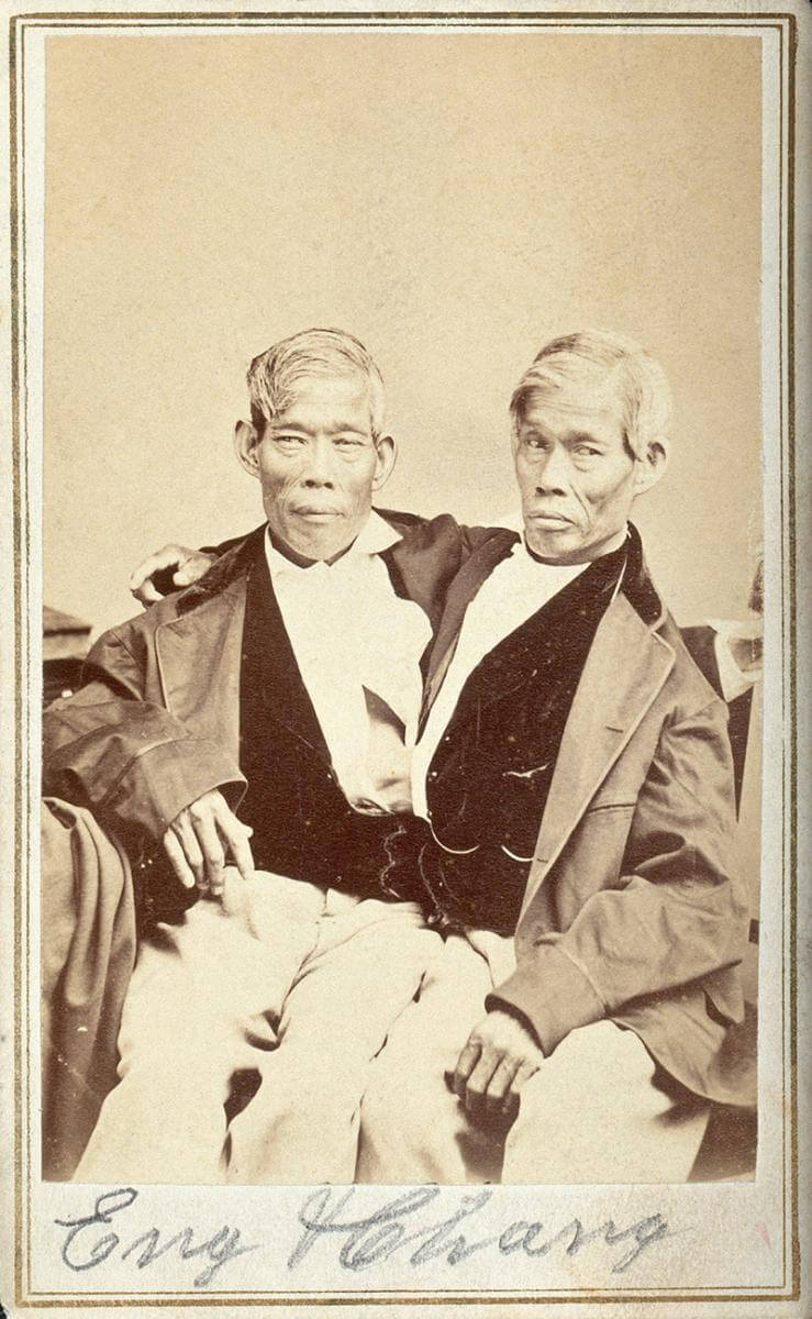 Eng and Chang. Photograph by unknown creator. Courtesy of the Wellcome Collection. Creative Commons license CC BY 4.0.